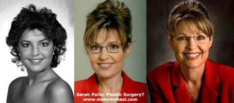 sarah-palin-plastic-surgery